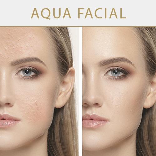 aqua-facial